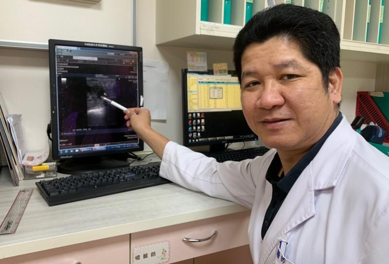 彰化醫院一般外科主任余明昌表示,江婦腫塊經切片檢查,確診是乳癌。(記者陳冠備翻攝)