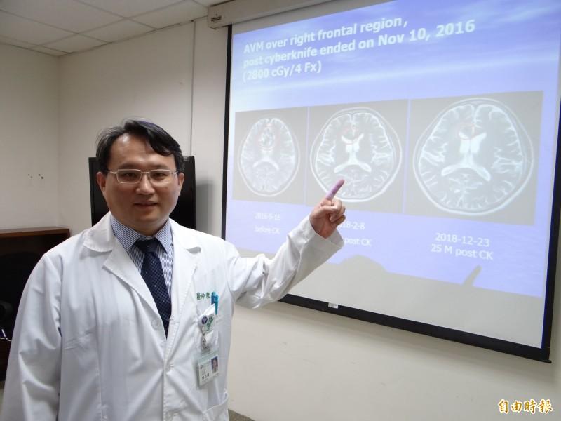 奇美醫學中心神經外科主治醫生陳志偉表示,部分顱內動靜脈畸形經電腦刀治療,可改善癲癇情況,但部分患者仍需靠藥物控制。(記者萬于甄攝)