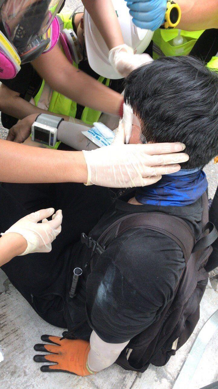香港警方九龍灣開槍驅散,有示威者懷疑被槍彈擊中左眼。(圖取自《TG_元朗人公海》)