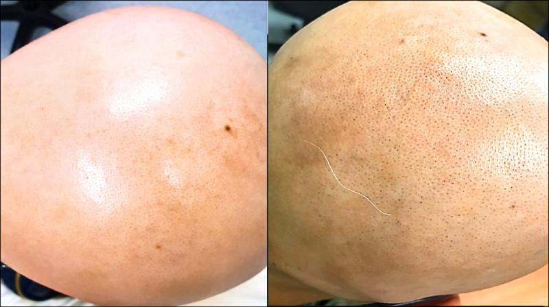 ▲這名粉領族的頭髮全掉光(圖左),經中醫治療兩個多月後毛囊增加,冒出毛髮(圖右)。(記者蔡淑媛翻攝)