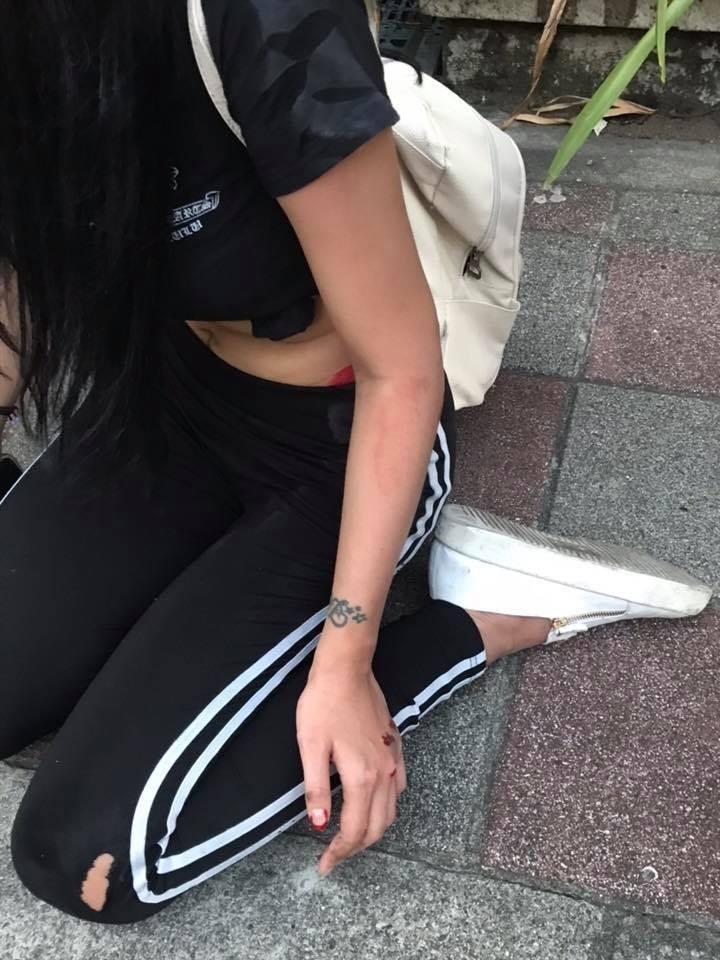 蔡女因跌倒造成手部輕微擦傷。(記者徐聖倫翻攝)