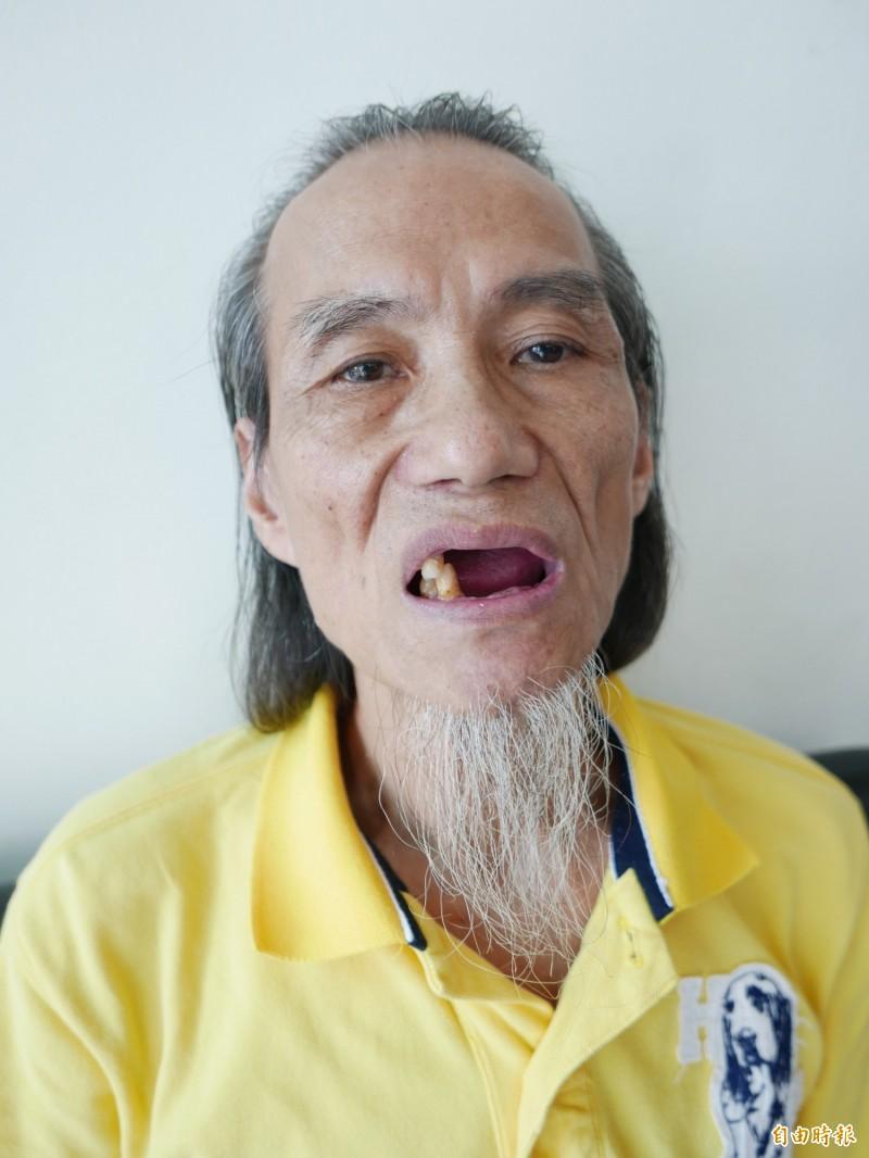 蘇先生現在只有3顆牙,吃流質食物,1個月暴瘦10幾公斤。(記者蔡淑媛攝)