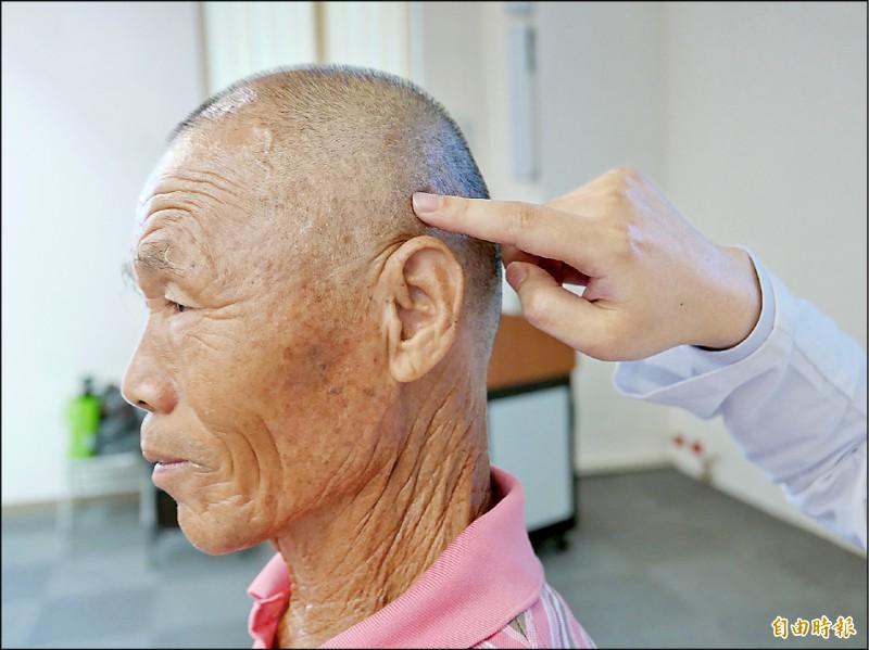 ▲陳睿正醫師指出周先生的小腦迴路異常,透過聚焦超音波治療,免於開顱手術。(記者蔡淑媛攝)