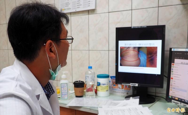 黃芳專醫師秀出「黑色棘皮症」照片,照片主角的頸後有一片黑色污垢,其實是黑色素細胞增生。(記者陳鳳麗攝)
