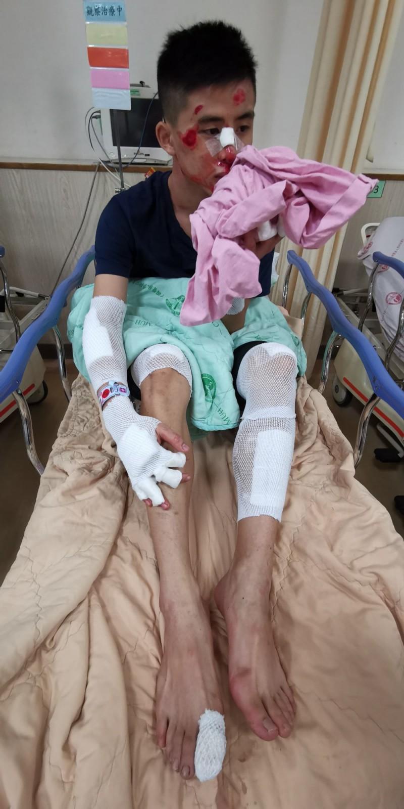 擔任學徒的姚弟弟,摔得全身擦傷、鼻樑斷裂。(姚先生提供、記者張瑞楨翻攝)