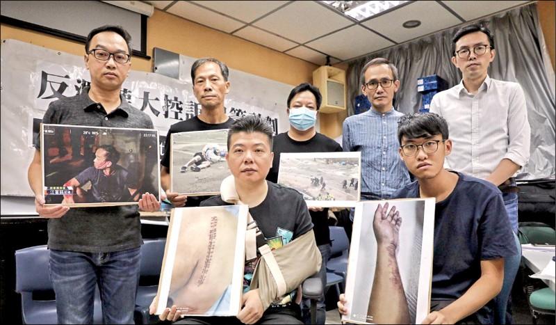香港10名遭受「警察暴力」的示威者,日前手持受害照片,發起「反濫權大控訴眾籌計畫」,預計籌募1000萬港幣,用於向警方提出民事索償與司法覆核。(取自網路)