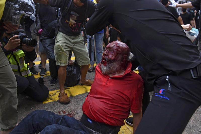 開計程車撞人的計程車司機遭示威者「私了」。(法新社)