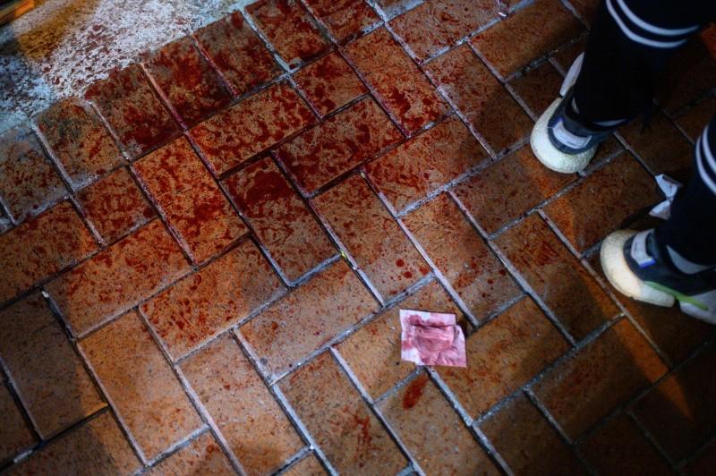 香港各區7日爆發激烈警民衝突,今傳出一名27歲的男子疑似被警棍打到腦出血,手術後人未清醒。(法新社)