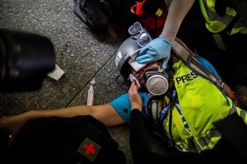 任職於香港印尼語媒體《SUARA》的印尼籍女記者Veby Mega Indah,上月29日遭港警以橡膠子彈射中右眼,損失視力達永久失明標準。(法新社)