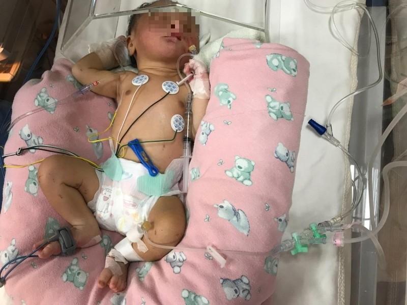高雄女棄嬰臍帶超過10公分 醫師研判產婦自行生產