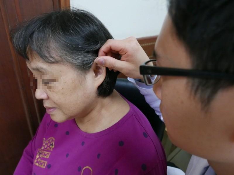 婦人感冒中耳發炎積膿 竟撐破耳膜