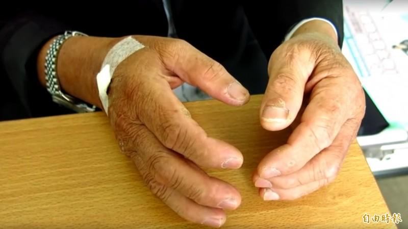 呂男雙手可見充斥細微破皮傷口。(記者歐素美攝)