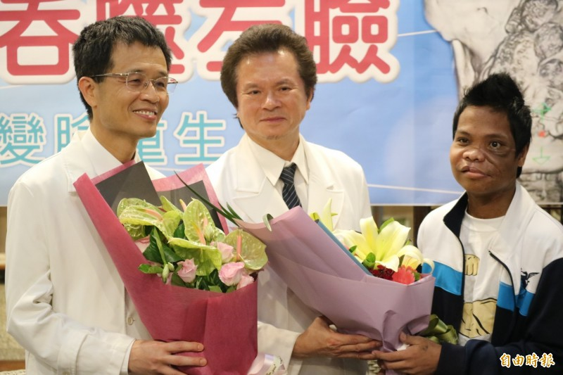 來自菲律賓、26歲的麥可(Michael Mahusay)四年多前左臉長出一顆約12公分的「牙骨質纖維瘤」,巨大腫瘤幾乎「吞噬」麥可半張臉,經過慈濟醫院變臉手術成功,獻花給主治醫師陳培榕、李俊達(左起)。(記者王錦義攝)