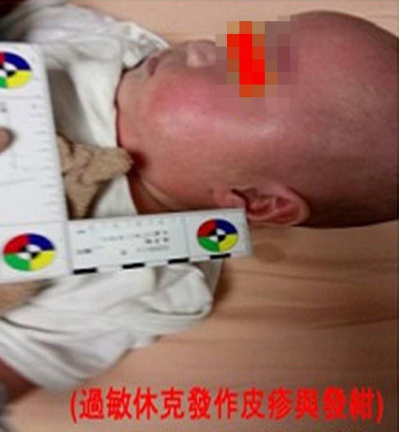 5月大男嬰吃九層塔炒蛋突休克險死 原因竟是...
