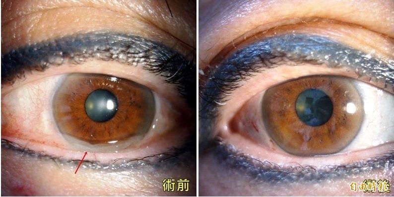 台中一名蔡姓女子,因結膜老化出現如「果凍」般的薄膜(左),經「結膜拉皮手術」治療後(右),恢復原本明亮的大眼。(記者陳建志翻攝)