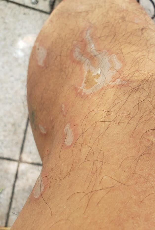 傷口初期照片。(圖擷取自臉書_勞工組)