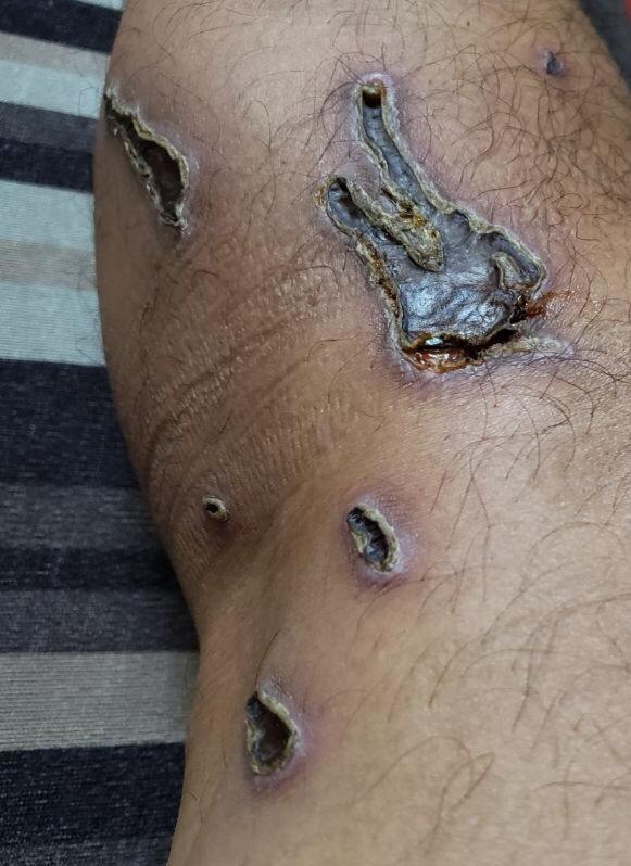 傷口後期照片。(圖擷取自臉書_勞工組)