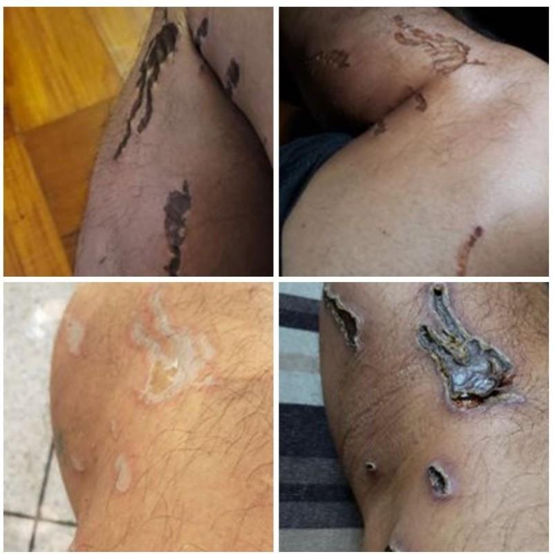 臉書粉專「勞工組」發佈數張網友投稿的嚴重潰爛、發黑的傷口照片,質疑港警所使用的「藍色水」、「胡椒噴霧」含有具腐蝕性的不明化學物質。(圖擷取自臉書_勞工組)