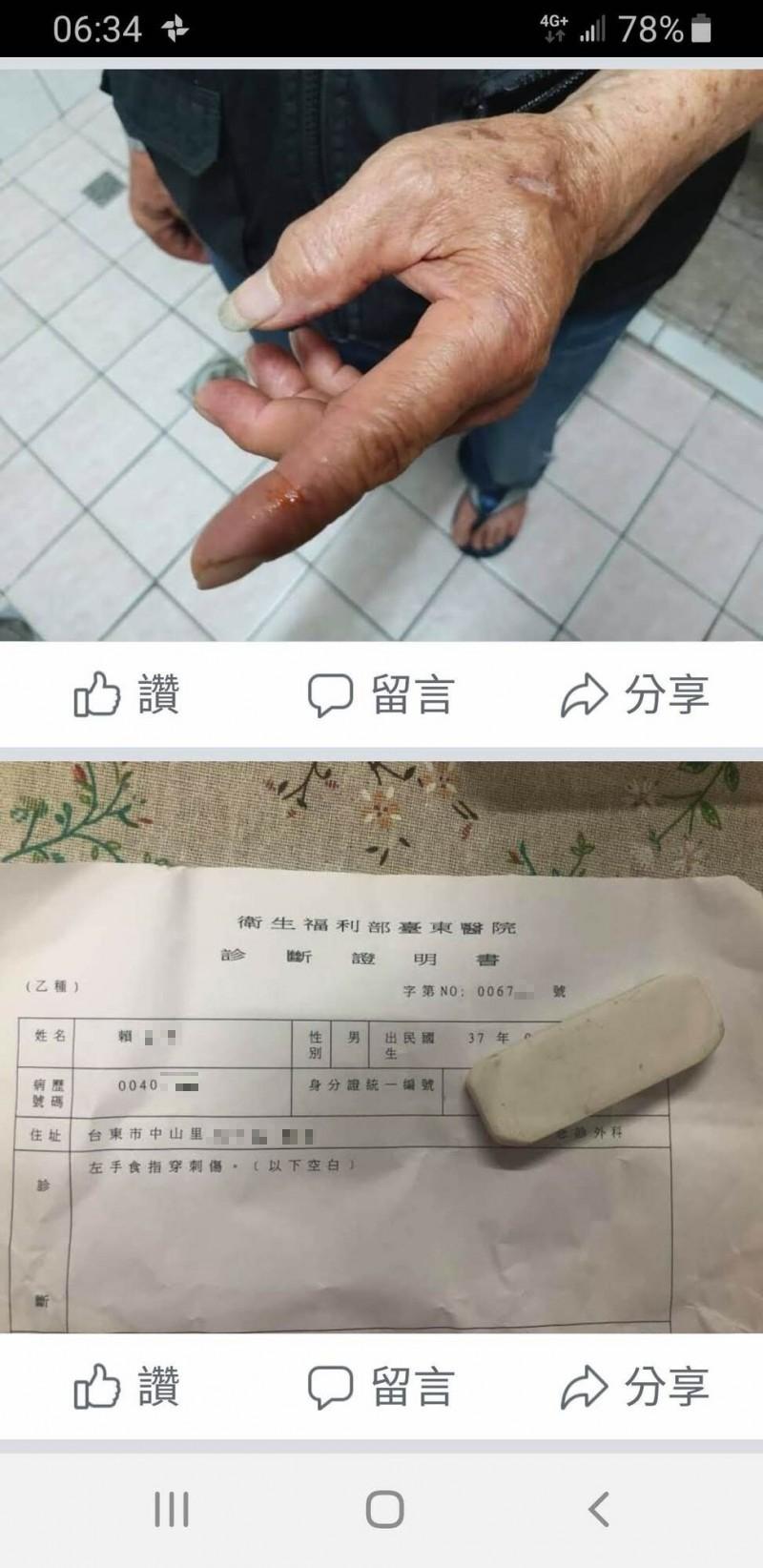 幼貓爆頭慘死,店家在凌晨在臉書po道歉文,並po老闆手指被貓咬及診斷書,指是因被貓咬的反射動作。(取自臉書)