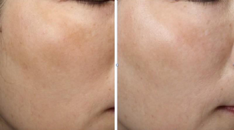 張姓婦人兩頰肝斑(圖左)經蜂巢皮秒雷射治療,斑點面積和色度改善7成(圖右)。(記者蔡淑媛翻攝)