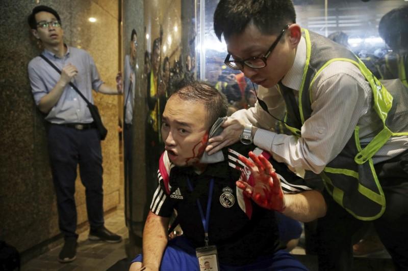 香港區議員趙家賢的耳朵被咬掉。(美聯)