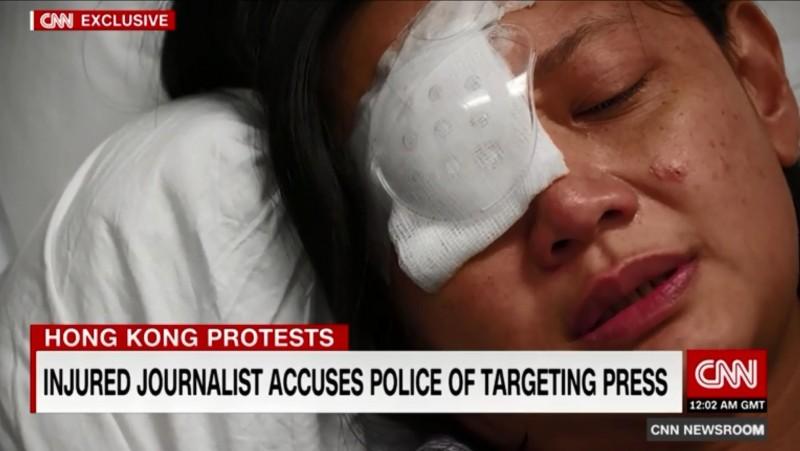 遭港警射擊右眼失明的印尼女記者印達,近期在病榻上接受《CNN》訪問,控訴香港並非戰區,港警行徑瘋狂。(圖取自《CNN》官網)