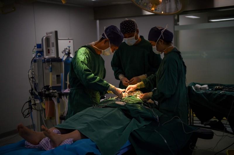 醫學期刊今(14)日刊登的一篇論文指出,中國自願捐贈器官數據「系統性造假」。手術示意圖,與本新聞無關。(法新社)