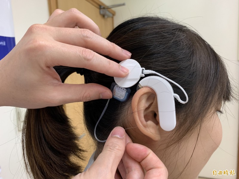 人工電子耳是利用耳外機類似助聽器,並以手術植入體內機電極,取代受損的耳蝸直接刺激聽神經,產生聽覺。 (記者蔡淑媛攝)
