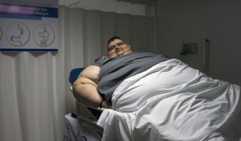 世界最胖男子佛朗哥三年成功甩肉330公斤,在2016年因過度肥胖上了新聞,引起全世界關注。(法新社)
