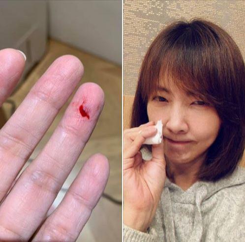 郭昱晴今日在臉書PO文表示,兩個禮拜前她被門夾到手,皮掀了一塊還見血,「比一位看起來身強體壯的Miss Chen(陳小姐)更嚴重」。(擷取自郭昱晴臉書)