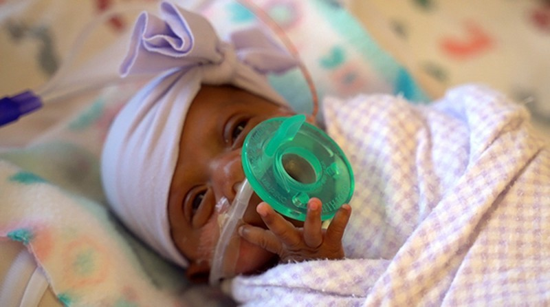 塞比亞被認為是全世界最輕的女嬰,出生時只有245公克。(美聯社)