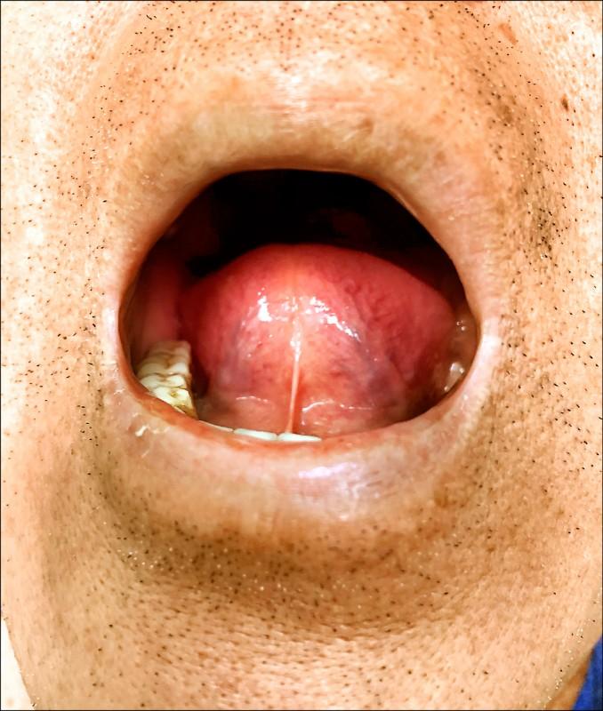 ▲舌下靜脈若呈現青紫或紫黑,屬於血瘀體質,代表血液循環不佳及血管硬度大,容易出現結膜下出血。(照片提供/郭祐睿)