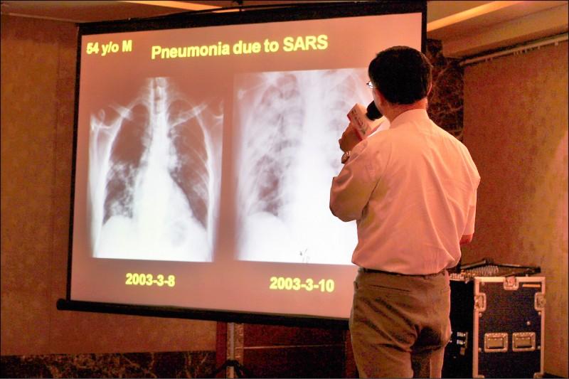肺炎的成因很多,圖為SARS病毒也會引發嚴重肺炎。(資料照)