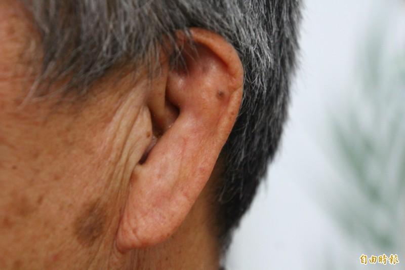 陳金煉因為練柔道整個耳輪變形扁平。(記者林宜樟攝)