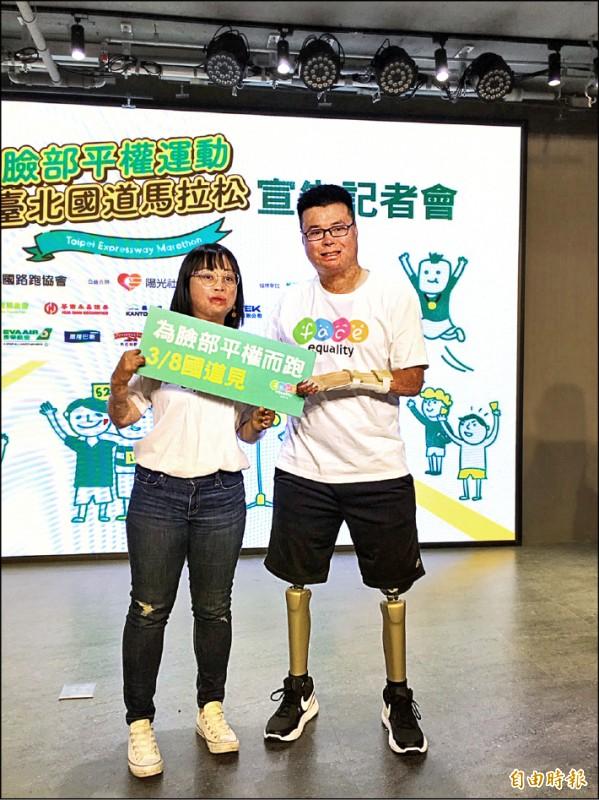 傷友吳承怡(左)、黃博煒(右)號召民眾一起參與臉部平權台北國道馬拉松。(記者楊綿傑攝)