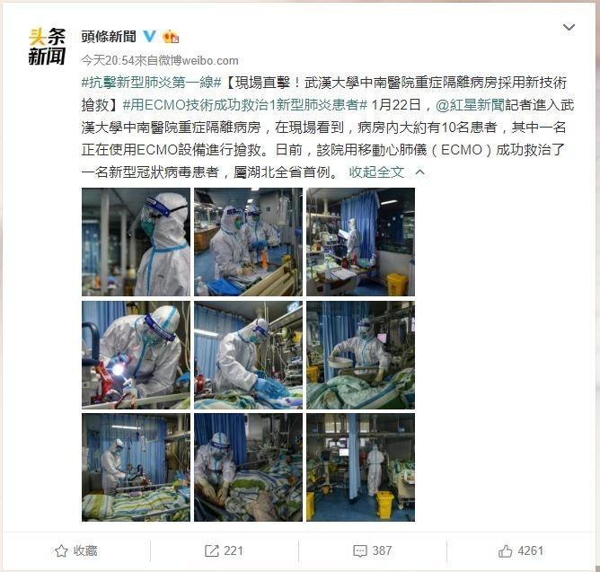 台灣醫師姜冠宇認為,葉克膜是在最危急時使用。(圖取自頭條新聞)