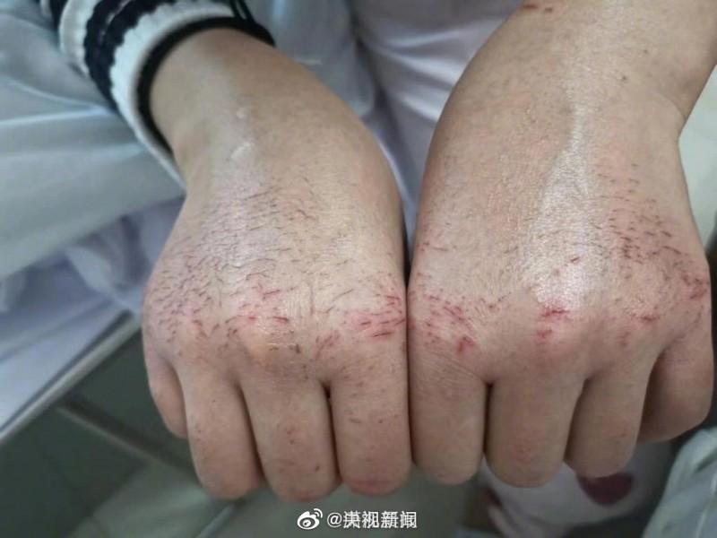 22歲的第一線防疫護士胡佩脫掉手套後驚見道道血痕。(圖片擷取自微博)