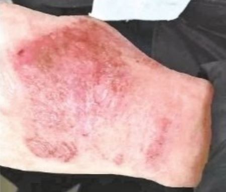 負責進行「病毒核酸檢測」的檢驗科醫生們,除每天連續工作12小時以上,雙手也因一直戴著不透氣的橡膠手套而紅腫、長紅斑,但他們仍堅守工作崗位,只為能盡快交出檢驗結果。(圖擷取自微博)