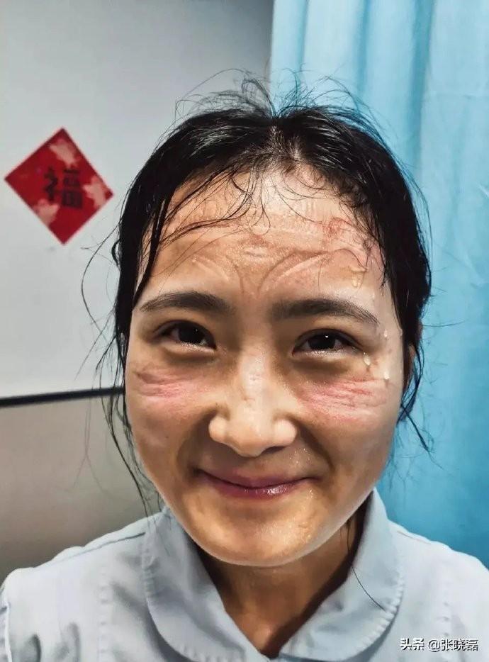一線女醫護臉上滿是防護器具的勒痕。(圖擷自媒體人張曉磊微博)