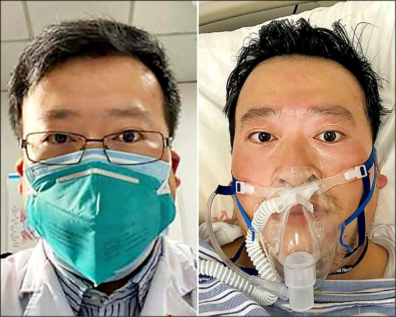率先披露武漢肺炎疫情的「八君子」之一、中國眼科醫師李文亮,七日凌晨不敵病毒摧殘辭世。圖為李文亮過去看診時戴著口罩(左)以及病逝前住院戴上呼吸器(右)。(法新社)