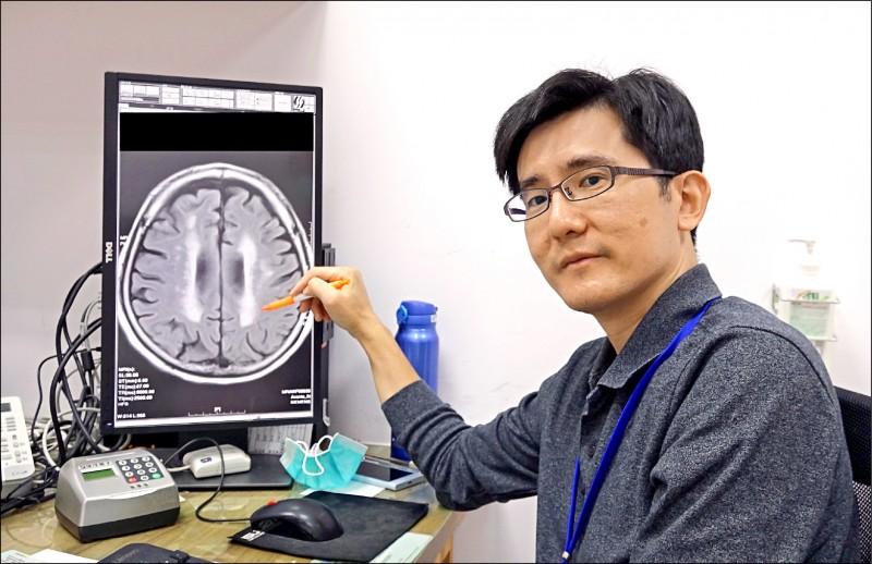▲醫師指阿茲海默症患者腦部的白色處為腦血管病灶。(記者蔡淑媛翻攝)