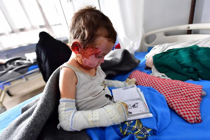 5歲的男孩在敘利亞東北部的一間醫院治療臉部燒傷。(法新社)