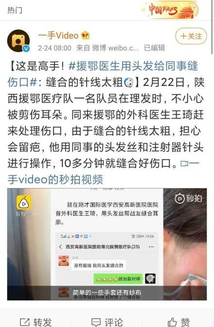 中國湖北頻傳物資僅缺消息,日前有為外科醫生透露因當地物資不齊全,自己只能應急用頭髮幫受傷同事縫合傷口。(圖翻攝自微博)
