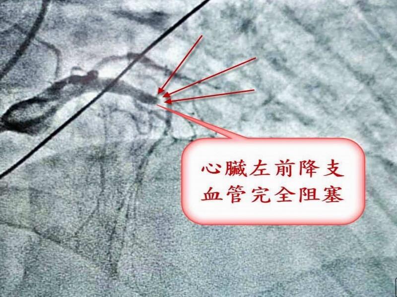 陳男心肌梗塞昏死,秀傳醫院發現其血管完全阻塞,情況危急。(記者湯世名翻攝)