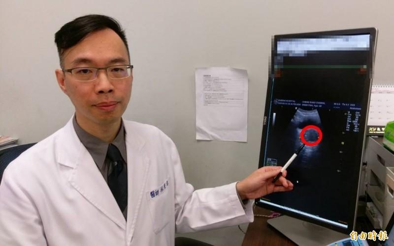 台中一名男子攝護腺肥大、頻尿,林彥志醫師以新式「雷射攝護腺剜除手術」治療,讓他排尿恢復年輕時的順暢。(記者陳建志攝)