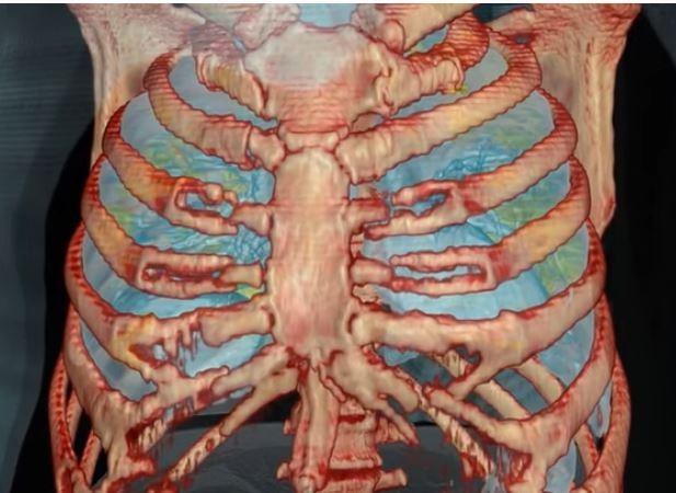 影片中黃色區域代表該處正經歷感染與發炎,從畫面中可輕易看出,損傷並不局限於個別區域,而是覆蓋了兩側肺葉的大量帶狀部位。(擷取自YouTube)