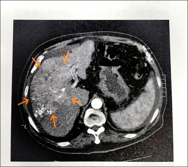 癌 肝 細胞