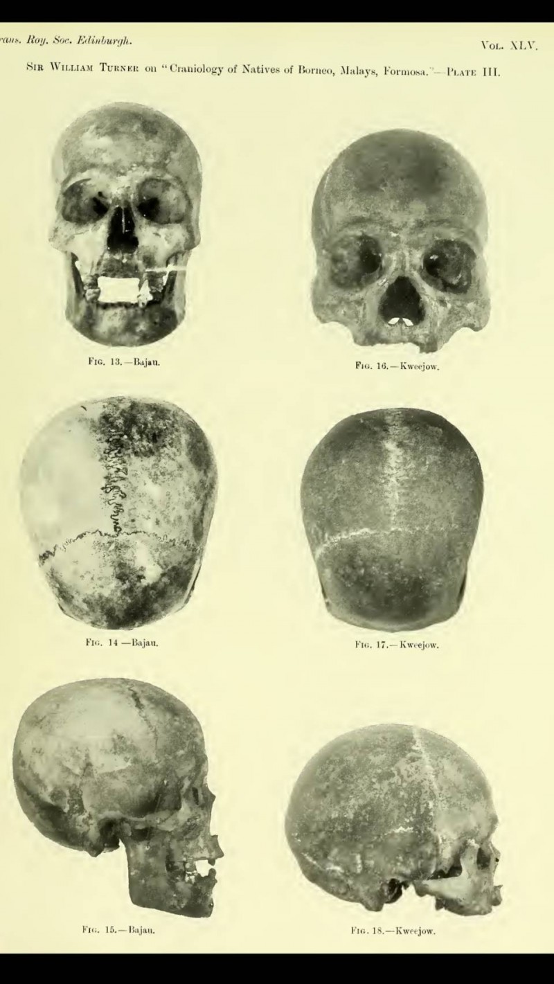 頭骨交由曾任愛丁堡大學校長之解剖學家Sir William Turner收藏及記錄至今。(記者蔡宗憲翻攝)