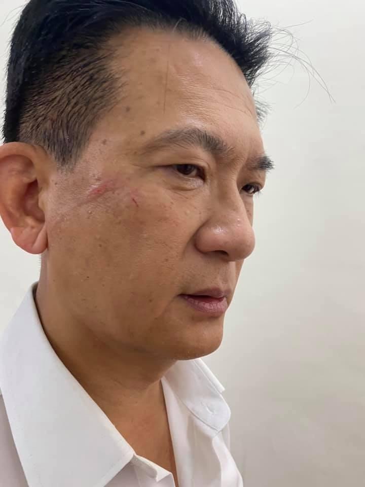 林俊憲(見圖)與藍委林為洲發生激烈扭打衝突,事後PO出受傷照並諷刺,以國民黨的標準來看,這叫不叫「整張臉被打爛」?(圖擷取自林俊憲臉書)