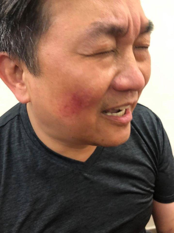 王定宇在衝突中臉部紅腫。(圖擷取自王定宇臉書粉絲專頁)